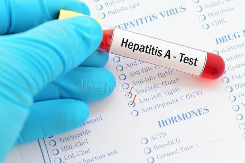 آزمایشات تشخیصی هپاتیت A